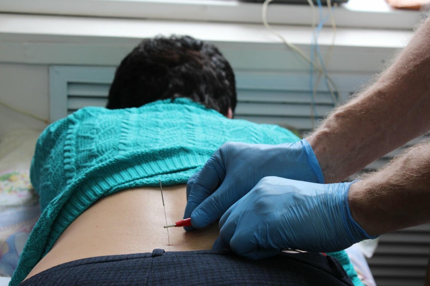 Димитровградские физиотерапевты применяют новые методы рефлексотерапии, фото-4